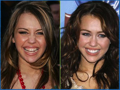 miley-cyrus-teeth-before-after-cosmetic-dentistry