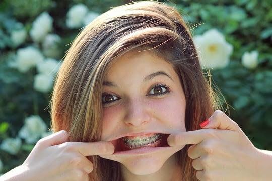 Nẹp răng (niềng răng) không còn là nỗi lo