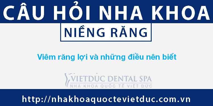 Viêm răng lợi, ngứa lợi và những điều nên biết