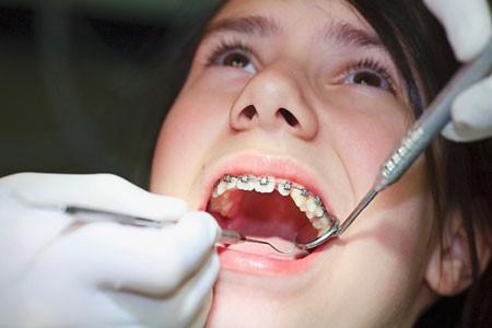 Những điều cần biết khi điều trị chỉnh hình răng hàm mặt