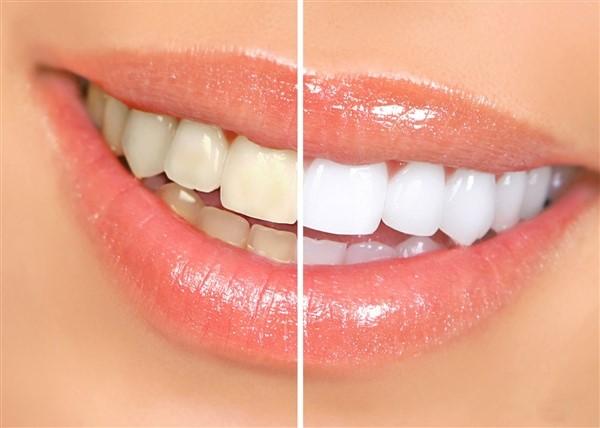 Tẩy trắng răng có hại không (1)