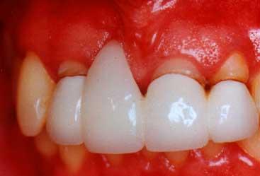 Kết quả hình ảnh cho Bỗng nhiên bị viêm lợi sau khi bọc răng