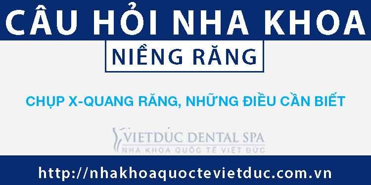 Chụp X-quang răng, những điều cần biết