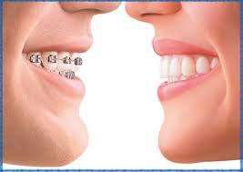Bao nhiêu tuổi có thể niềng răng (1)