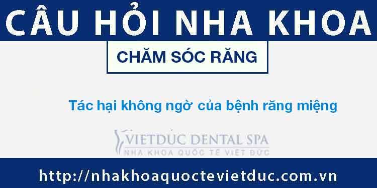 Bệnh Răng Miệng – Tác Hại – Cách Chữa