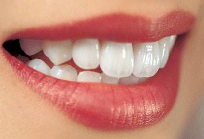 Tẩy trắng răng cần bao nhiêu tiền?