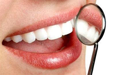 Tẩy trắng răng cần bao nhiêu tiền? (1)