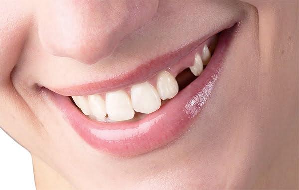 Kết quả hình ảnh cho Một chiếc răng người lớn không đi vào đúng cách