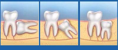 Mọc răng khôn đau bao lâu