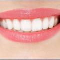 (1)Tẩy trắng răng có hại không