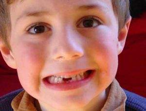 Chăm sóc răng trẻ em 2