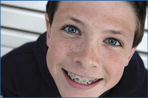 Chăm sóc răng trẻ em 4