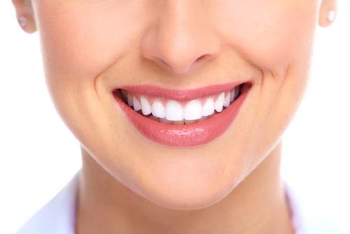 Giải pháp nào cho răng hô, móm nhẹ