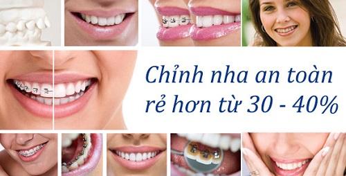 Chỉnh nha - Niềng răng 5