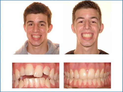Điều chỉnh răng hàm mặt