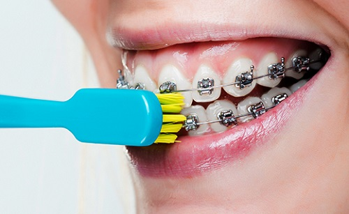 Niềng răng và những câu hỏi thường gặp 1