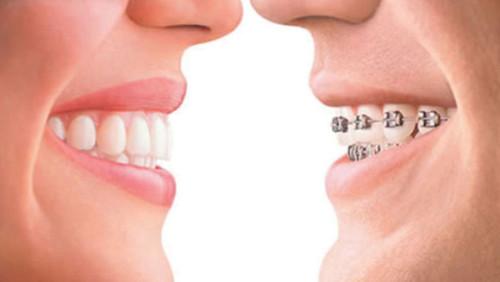 Tư vấn niềng răng