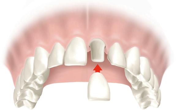 6 điều nhất định bạn phải biết trước khi làm răng sứ Titan