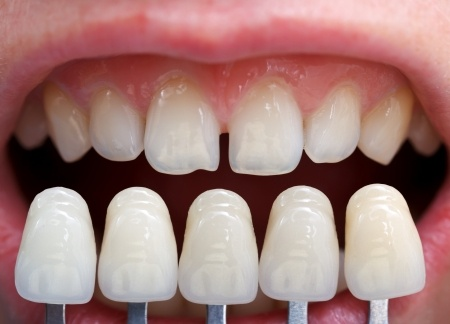 Bọc răng sứ thẩm mỹ – Những Câu Hỏi Thường Gặp