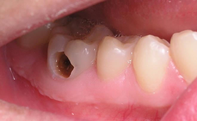 Sâu răng được biết là một bệnh răng miệng thường gặp