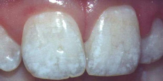 DentalFluorosisMottledTeeth1