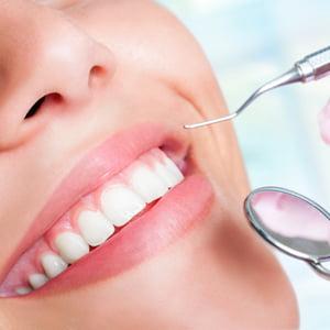 Điều trị răng