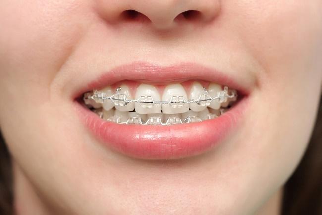 Niềng răng mắc cài khắc phụ răng mọc lệch