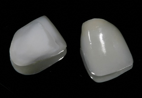 Răng sứ Veneer khắc phục răng lệch lạc và nhiễm màu