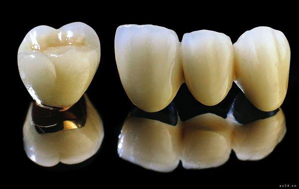 6 điều nhất định bạn phải biết trước khi làm răng sứ Titan 1