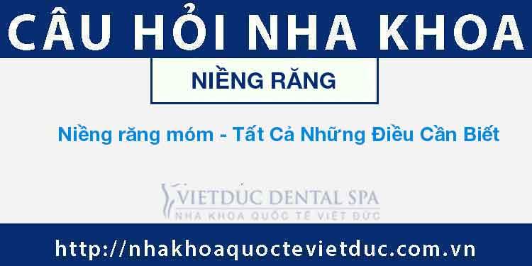 Niềng răng móm – Tất Cả Những Điều Cần Biết