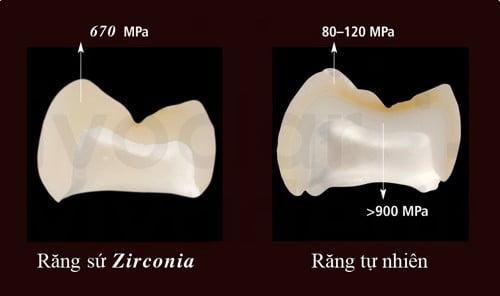 rang-su-zirconia