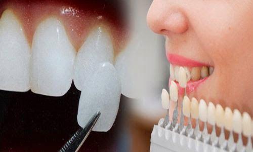 Đắp răng sứ là thế nào?