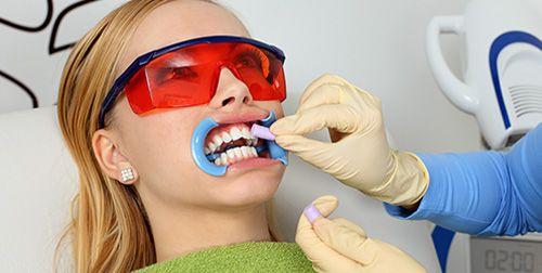 """Làm trắng răng cấp tốc dạng """"mì ăn liền"""" có hiệu quả?"""