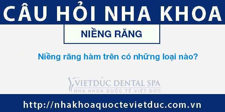 Niềng răng hàm trên có những loại nào?