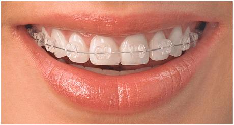 niềng răng pha lê