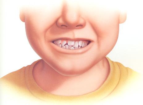 Niềng Răng Mọc Lệch Có Hiệu Quả Không?