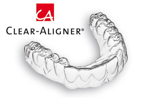 nieng-rang-trong-suot-clear-aliger-1