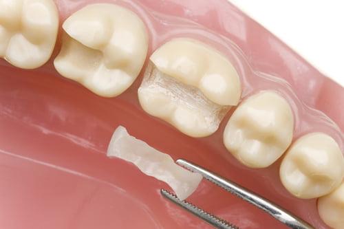 Image result for hàn răng bằng chất dẻo composite