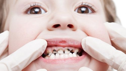Miễn phí dịch vụ răng trẻ em từ 26/5 đến 4/6