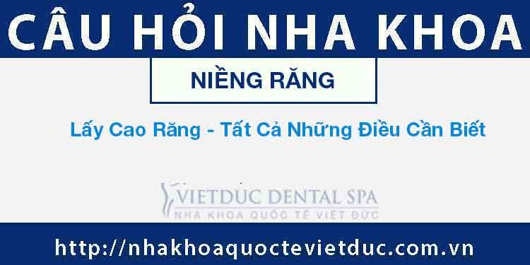 Lấy Cao Răng – Tất Cả Những Điều Cần Biết