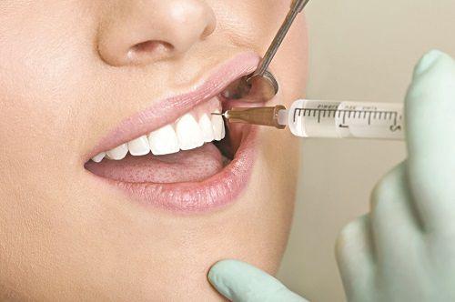 Nhổ răng – Các Vấn Đề Thường Gặp