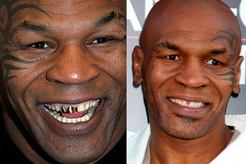 Trồng Răng – Các Kiểu Răng