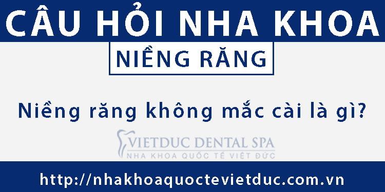 Niềng Răng Không Mắc Cài Là Gì?