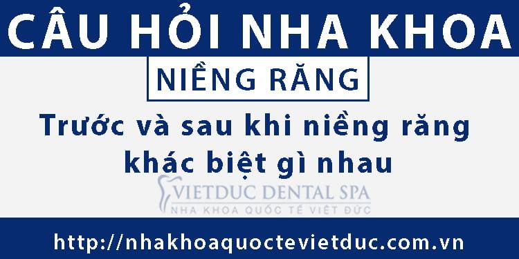 Trước và sau khi niềng răng khác biệt gì nhau?