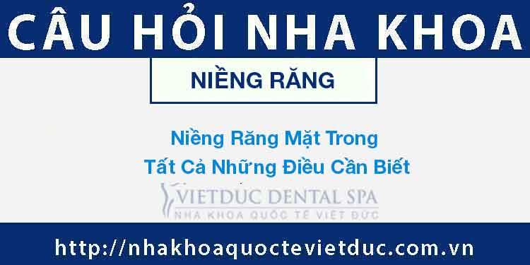 Niềng Răng Mặt Trong – Tất Cả Những Điều Cần Biết