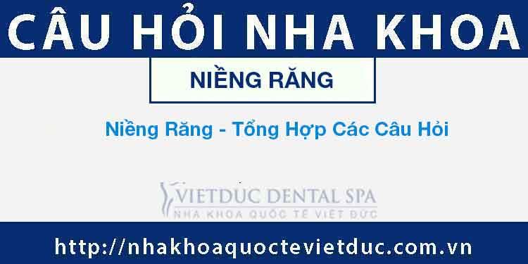 Niềng Răng – Tổng Hợp Các Câu Hỏi