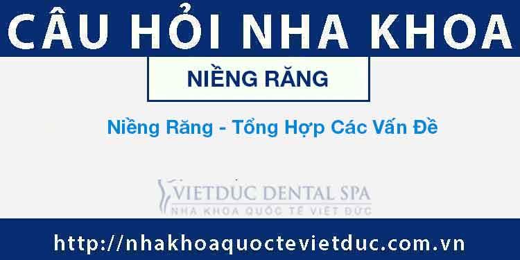 Niềng Răng – Tổng Hợp Các Vấn Đề