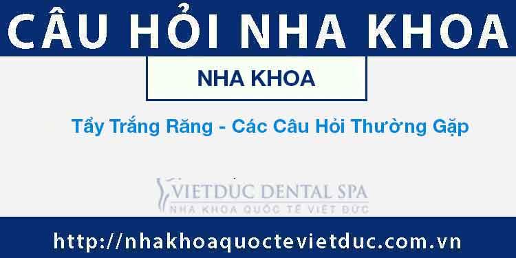 Tẩy Trắng Răng – Các Câu Hỏi Thường Gặp