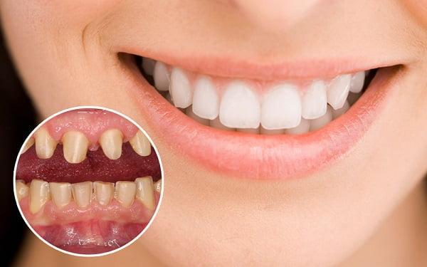 Bọc răng sứ là phương pháp thẩm mỹ răng hiện đại