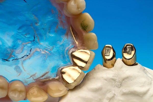 Chi phí bọc răng sứ thẩm mỹ tại NKQT Việt Đức là bao nhiêu?